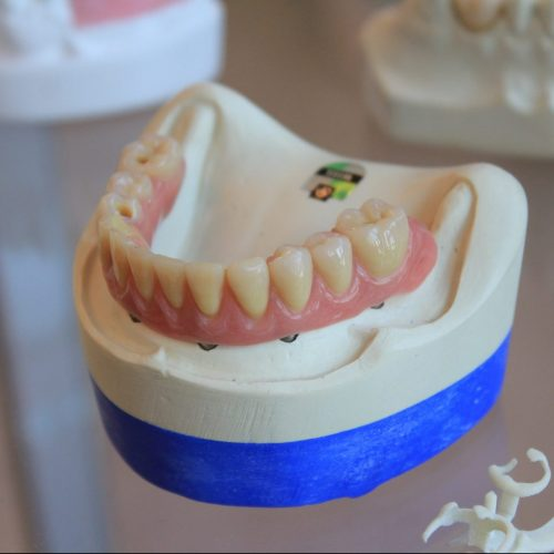 clinica-orthodontia-crowns-caps
