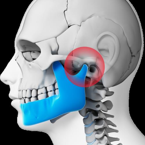 clinica-orthodontia-tmj-disorder
