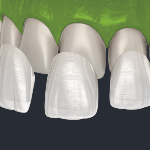 clinica-orthodontia-veneers-porcelain